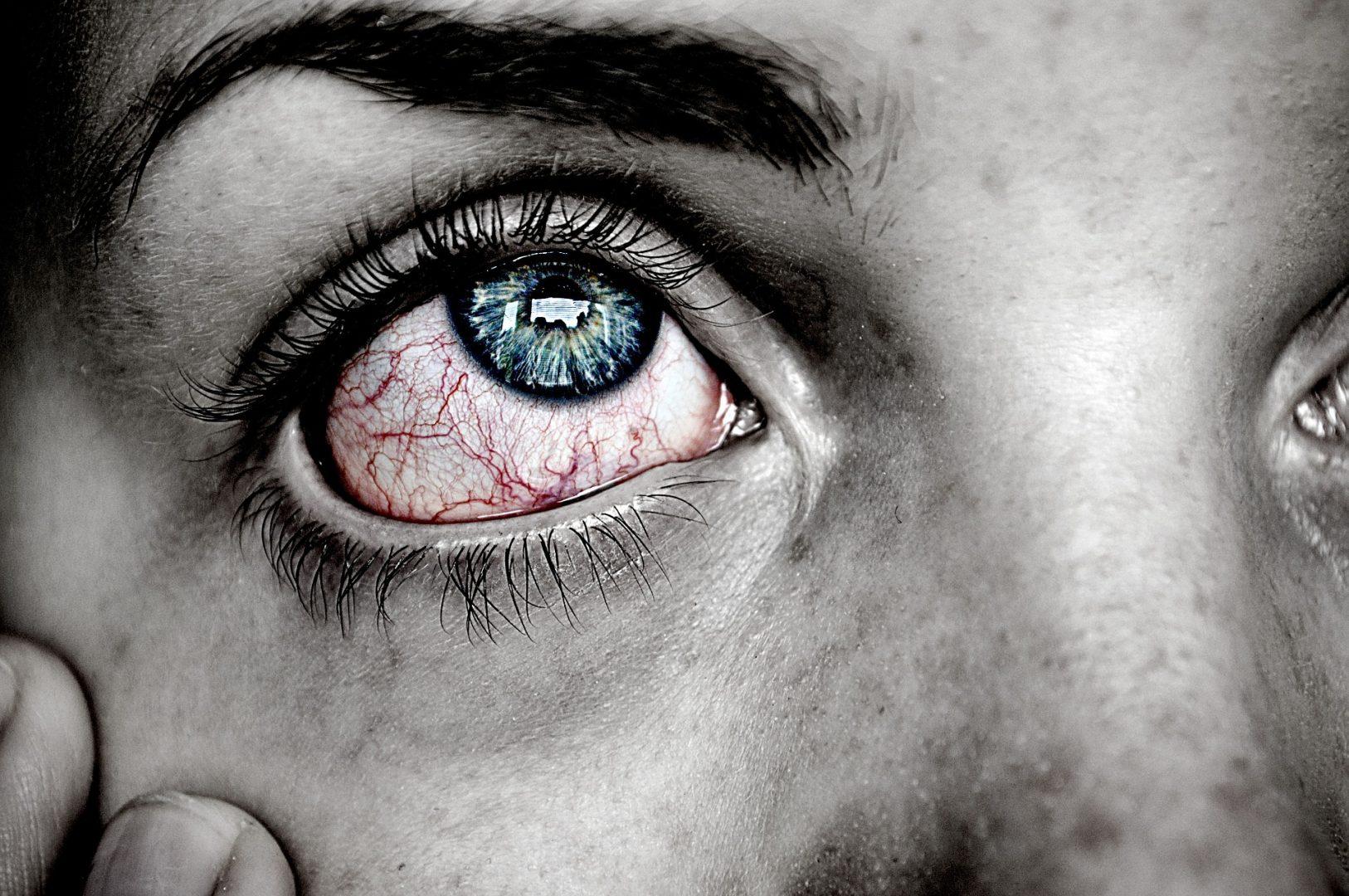 Infecção no olho: 6 cuidados para evitá-la
