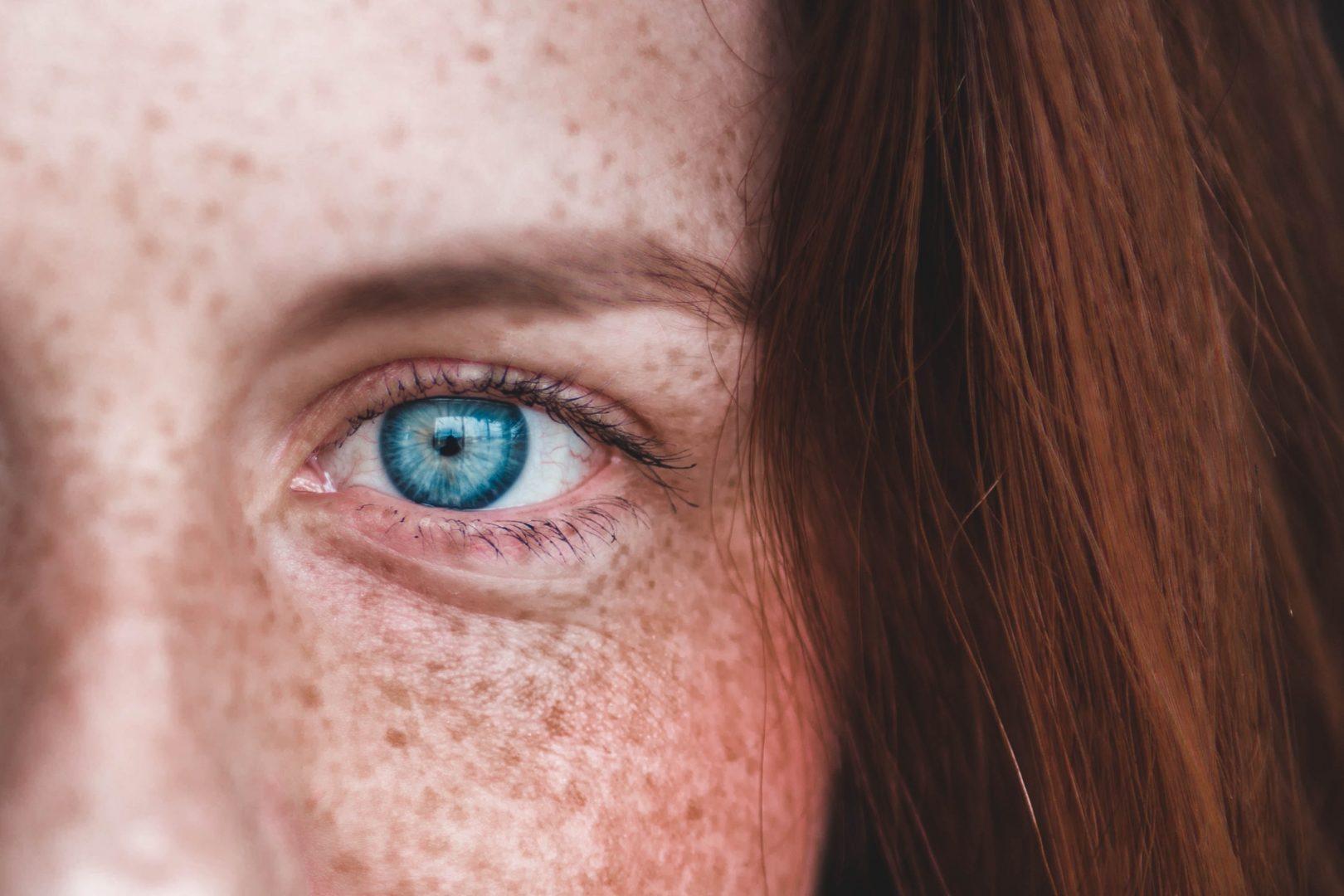 Olho azul: curiosidades e cuidados